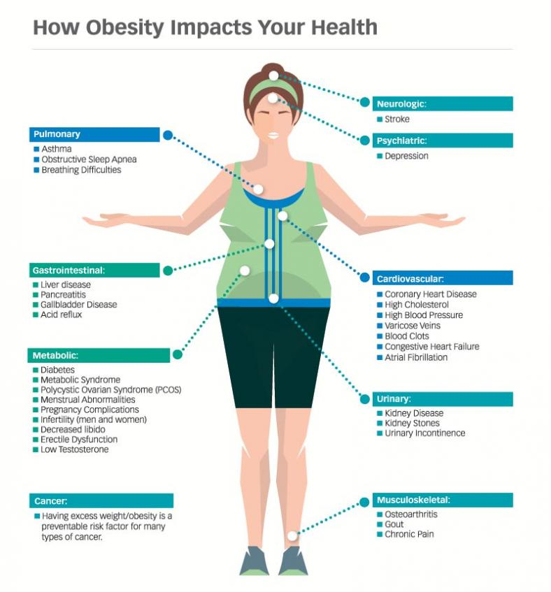 Illustration showing how obesity impacts your health